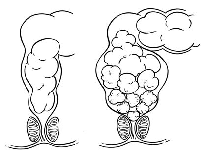 The Ins and Outs of Poop